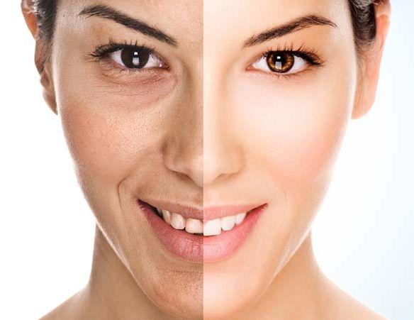 Los efectos de la aplicación de la crema MaxLift - efectos secundarios - controindicaciones