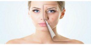 Consejos para el cuidado de la piel