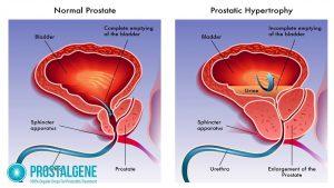 Crecimiento anormal de la prostata