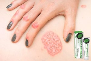 Dermaseptic – hace mal – contraindicaciones – efectos secundarios – fraude – corte ingles