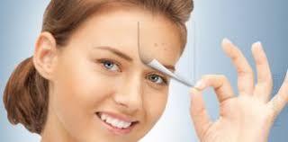 Quitar las espinillas de la cara: 4 métodos eficaces, de peeling a hydroquinone